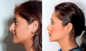 rhinoplasty melbourne
